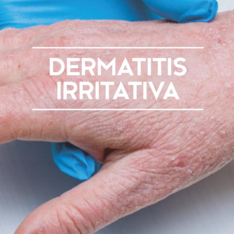 Dermatitis-Irritativa_Portada BBlog_storie1